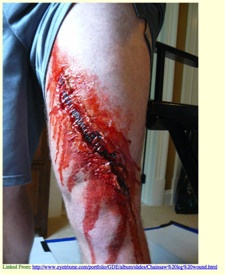 Chainsaw injuries 2.png