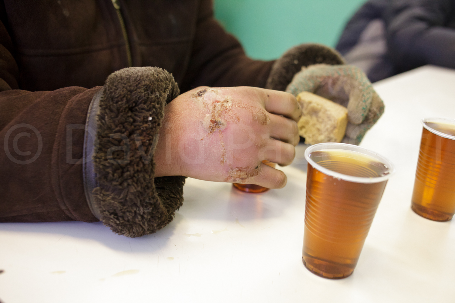 A homeless man's hands, burned by the cold.