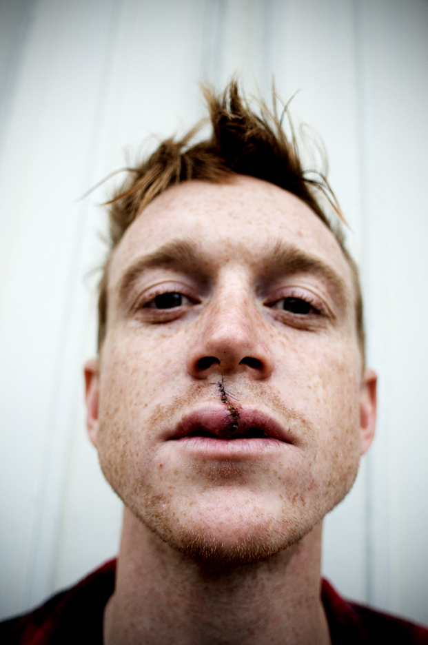 Brian_Heck_stitches_lip_DSC_5077_2.jpg