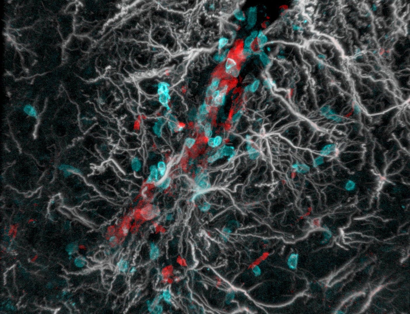 Astrocytes and T cells in EAE spinal cord