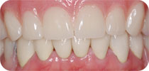 New dentures with lower anterior crowns