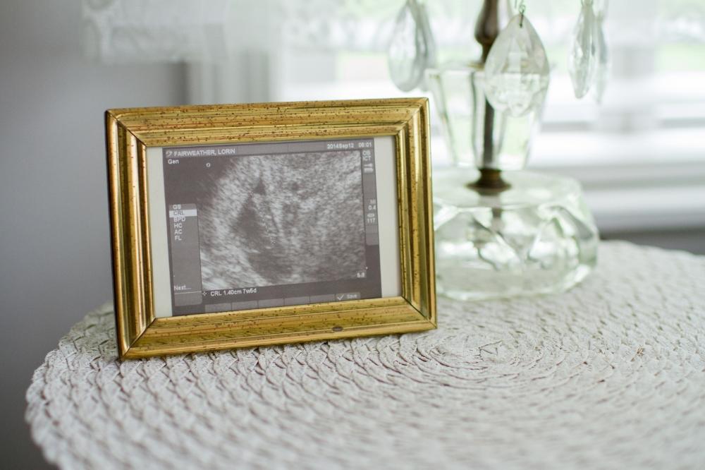 Framed ultrasound photo | Lorin Marie Photography