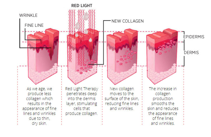 red-led-light-treatment-sonya-dakar.jpg