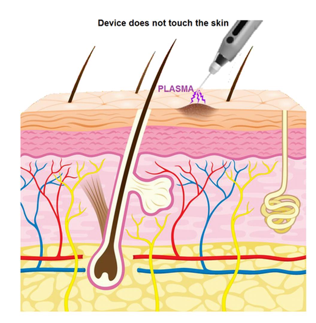12. Skin Diagram.png