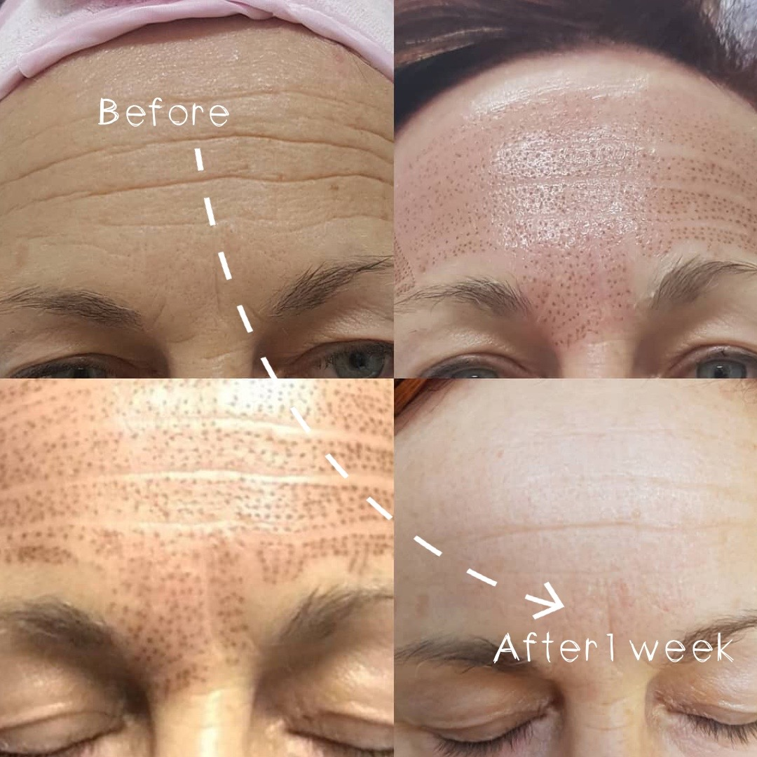 Plasma Fibroblast Forehead Treatment JUNE Promo $495