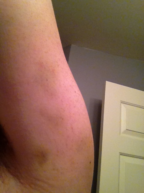 Bruise under arm. You can barely see it.