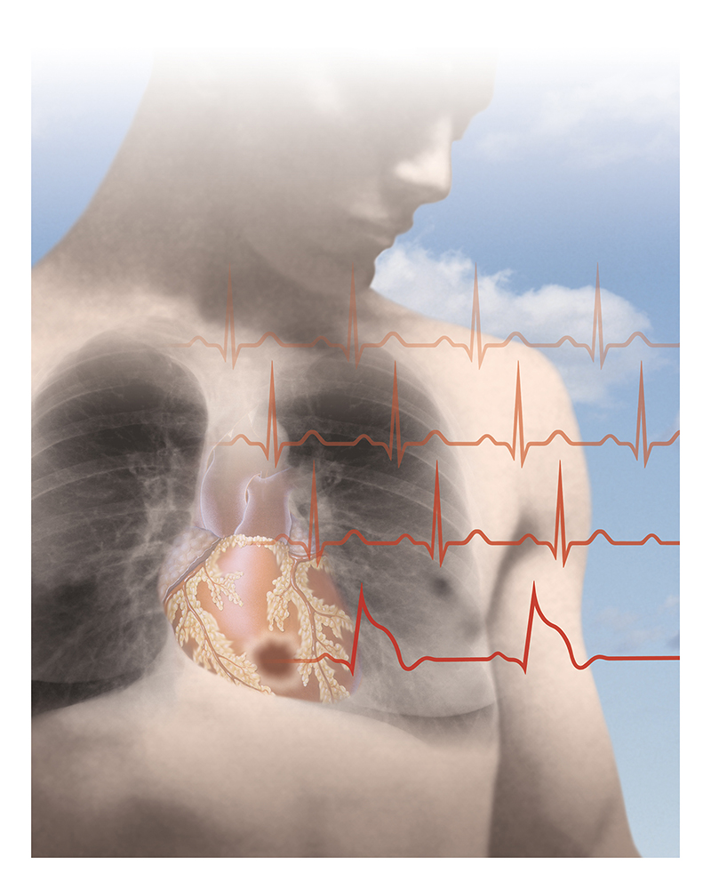Nursing Magazine Illustration on Heart Attacks