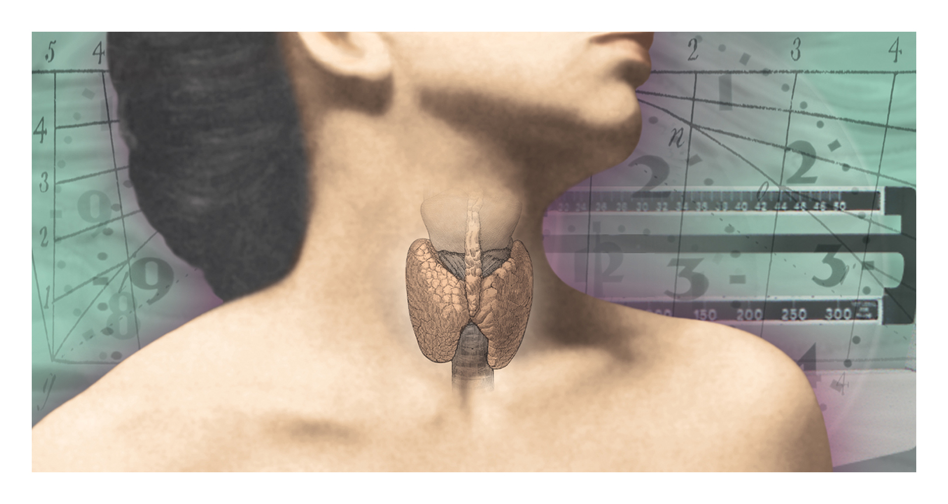 Chicago Tribune Illustration about Thyroid Problems