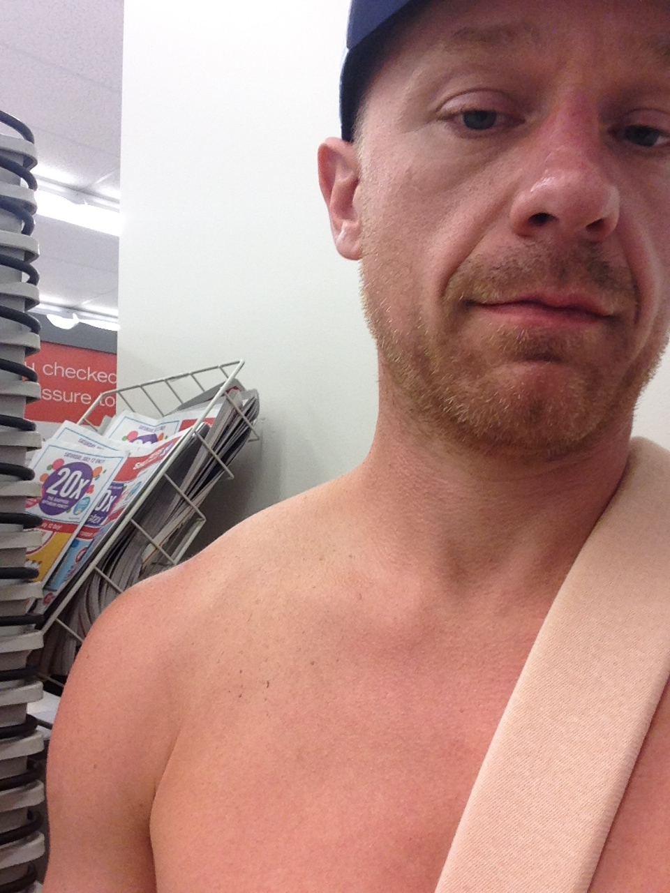 Sitting in the Hospital in Penticton. Notice the nice 'bump' on the top of the right shoulder - nice broken clavicle...