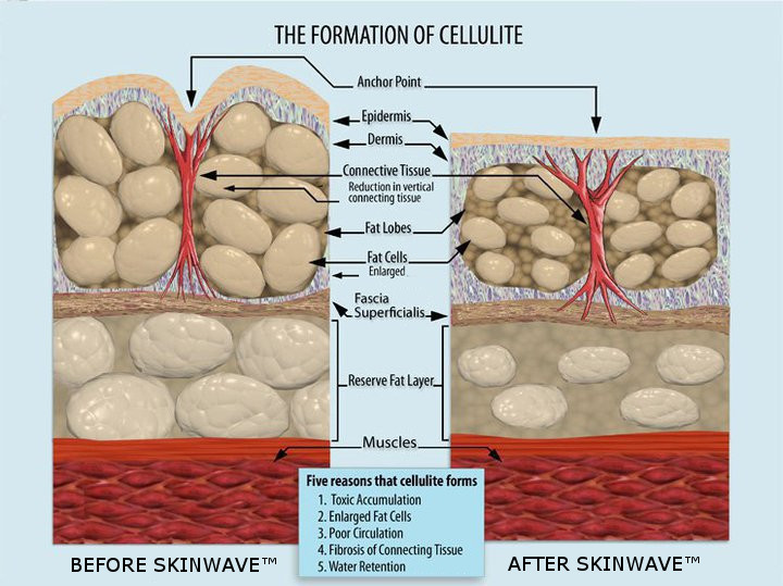 SkinWave is 100% natural and does not destroy any cells (it only shrinks them)!