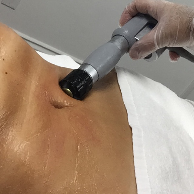 SkinWave abdominal treatment