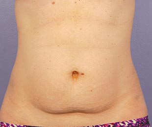 CoolSculpting patient before