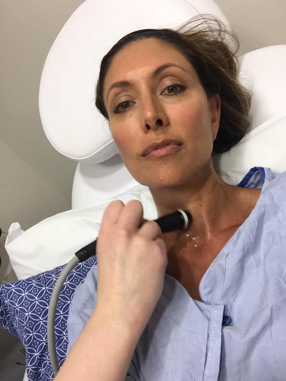 I had instant results with the ThermiSmooth treatment on my neck and around my eyes. And, it was painless!