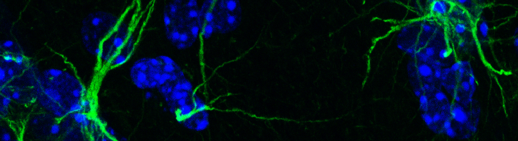 Astrocytes expressing the Netrin-1 receptor UNC-5 (in green) appear to embrace neuronal cell bodies (in blue). Molecular and Cellular Microscopy Platform, Douglas Hospital Research Centre, 2017. Photo by Daniel Hoops.