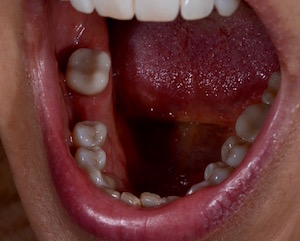 Without the flexible partial denture