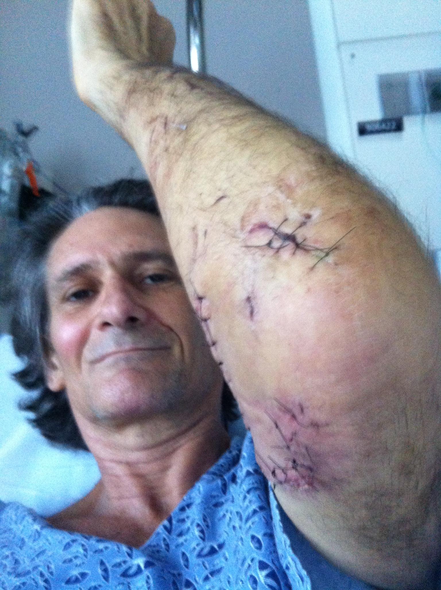 arm stitches.JPG