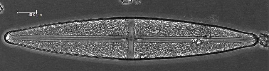 A diatom of the genus  Navicula  collected in Peru.