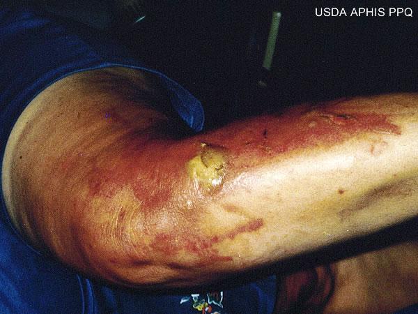 phytophotodermatitis_burns.jpg
