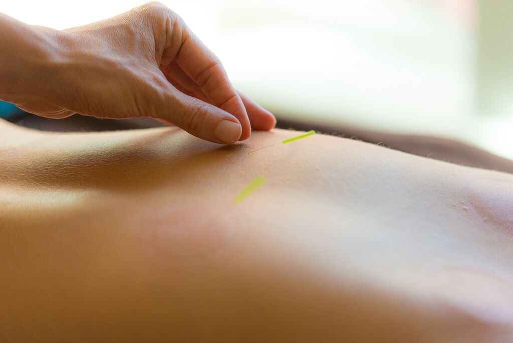 Copy of Needle placement is a fine art in acupuncture