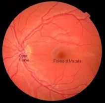 Normal eye:  No lesion over the macula (center of retina)
