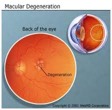 An eye with Macular Degeneration: Notice the black spot in the healthy eye is missing in the MD eye. Scar tissue has overtaken the macula.