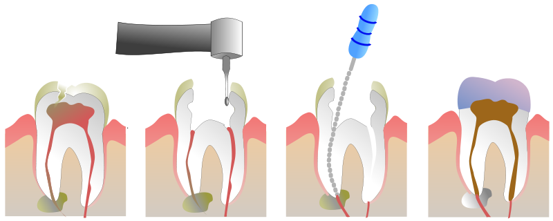 Root Canal Illustration by Jeremy Kemp. Image licensed under  GFDL .