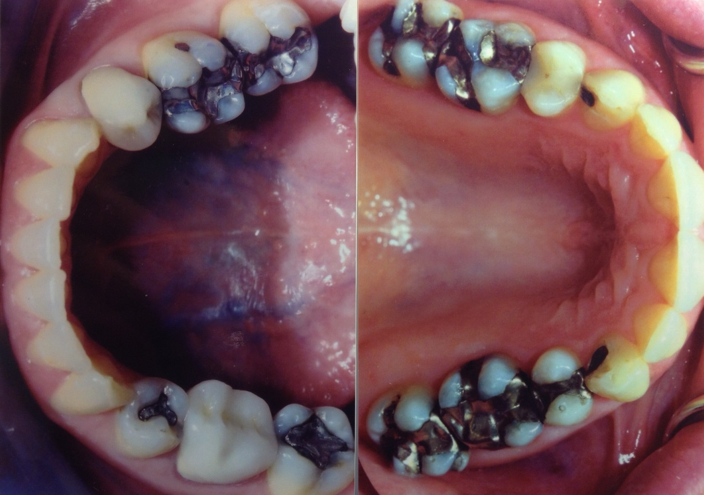 Before:  Patient's teeth were previously treated with amalgam fillings.