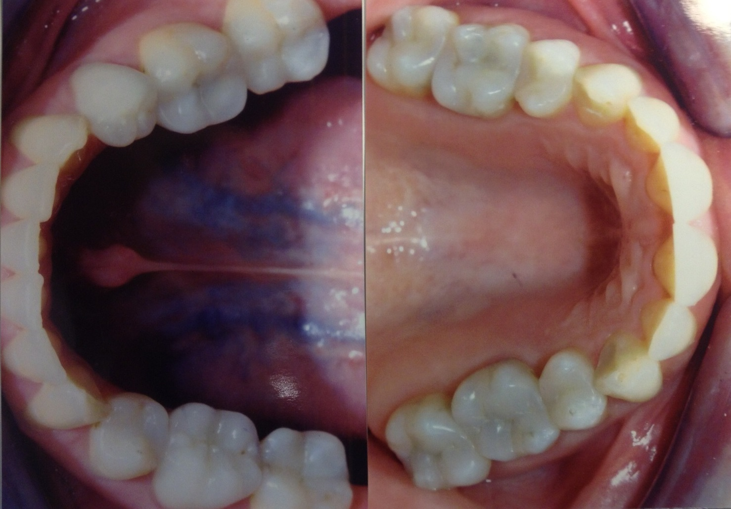 After:  Same patient after we replaced the old fillings with composite fillings.