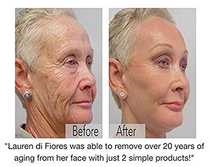 Skin Care Proven Results 2
