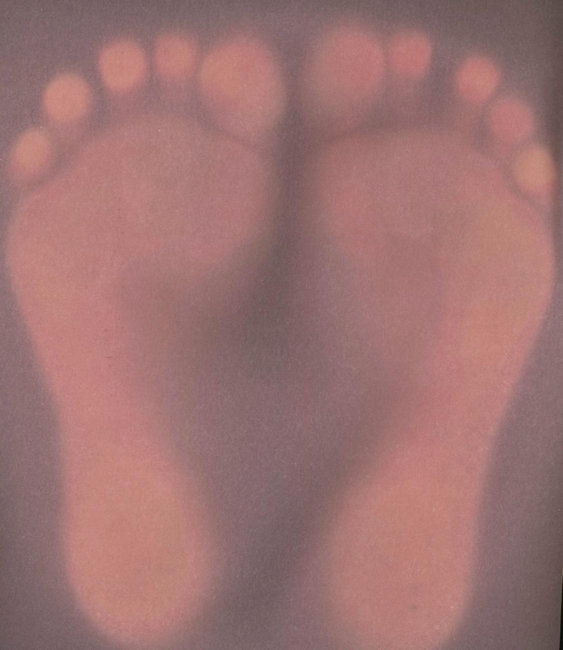 feet scan