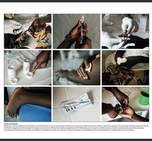 Health Services in Refugee Camps Are Helping South Sudanese Women Tell Their Stories of Sexual Violence for The Lancet with special thanks to MSF and The Pulitzer Center  Women who come to the Médecins Sans Frontières clinic within the rst 72 hours of sexual assault are asked a series of questions to determine what the best form of treatment should be. The women take a pregnancy test and an HIV test, and if both are negative, the women are given emergency contraception and 28 days of post-exposure prophylaxis for HIV. Additionally, women are given an antibiotic injection and pills to prevent syphilis, gonorrhoea, chlamydia, and trichomoniasis. Patients are asked if their immunisations for hepatitis B and tetanus are up to date. They are also invited to see a psychologist and to bring their children or husbands back for future counselling. #photo #photograph #photography #photographer #journalism #health #woman #women #womenshealth #healthcare #refugee #refugees #refugeeswelcome #Uganda #southsudan #africa #adrianeohanesian