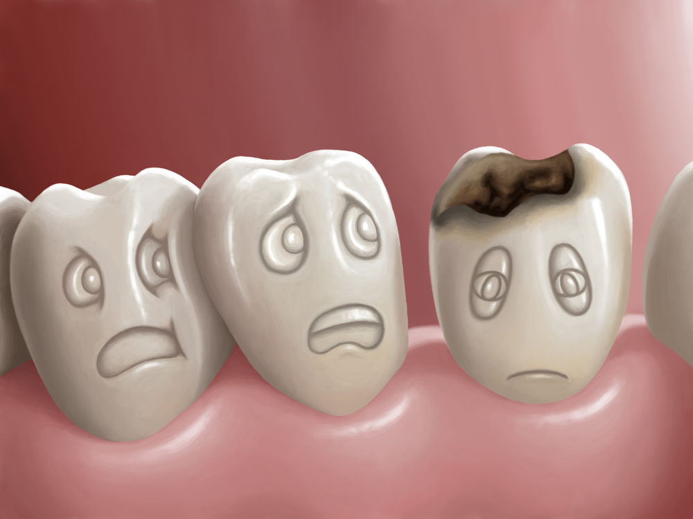 Fillings, Crowns and Root Canals