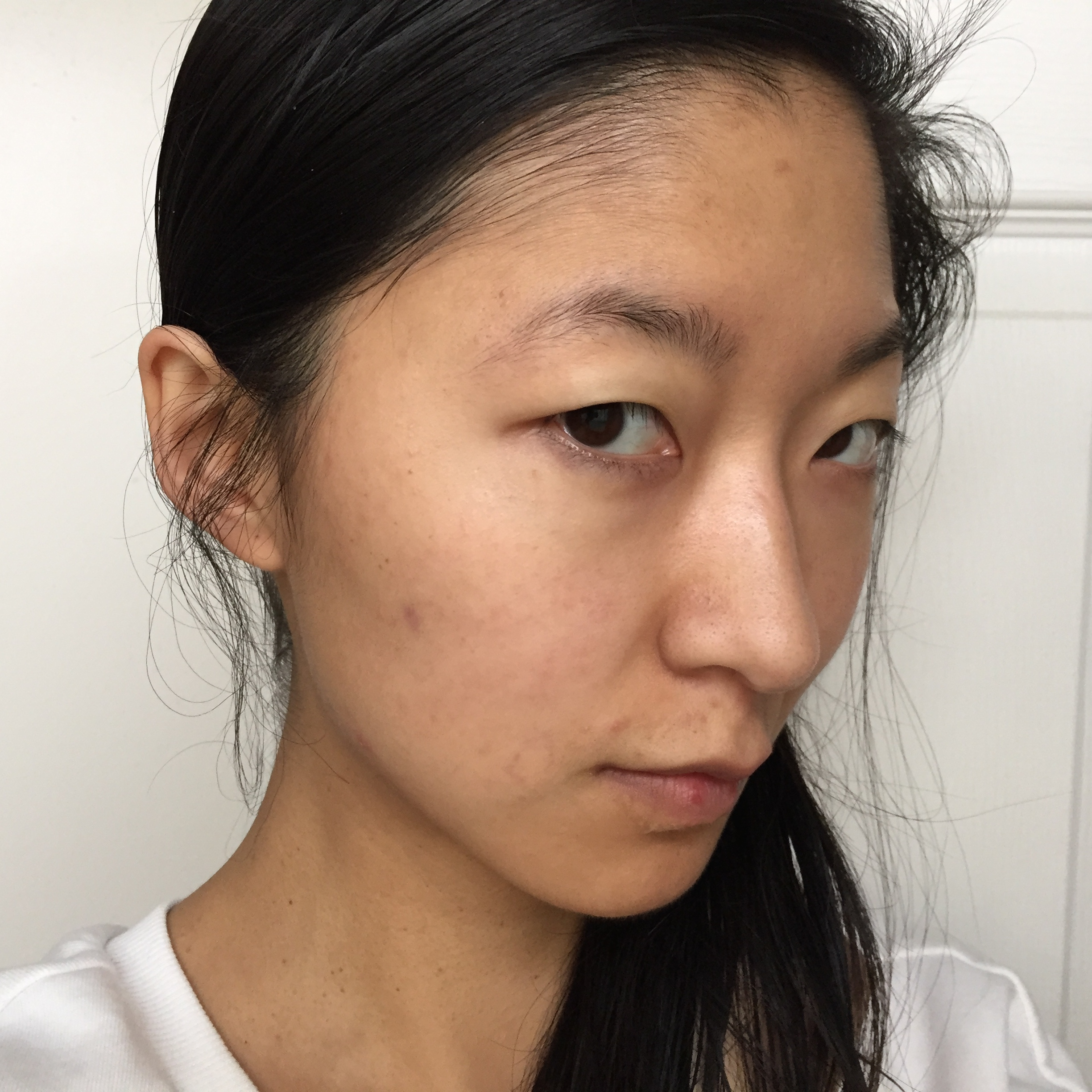 Before Concealer : Look at that big spot on my cheek!