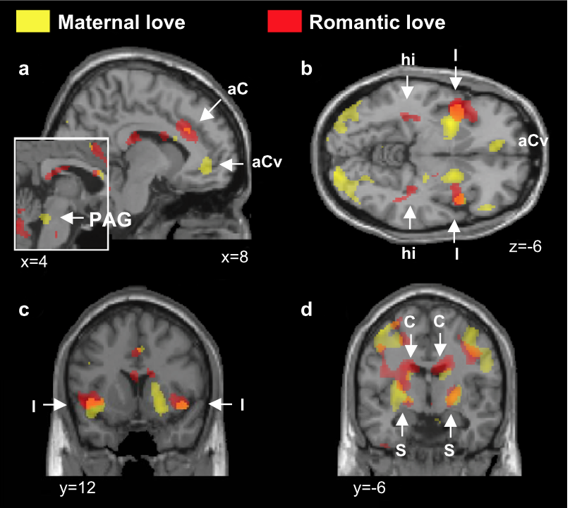 จากการศึกษาด้วย functional neuro-imaging จากทีมจาก University College Londonชี้ให้เห็นสมองส่วนที่ถูกกระตุ้นในภาวะของความเป็นแม่ และ คนที่ตกหลุมรัก ก็พบได้ว่า มันเป็นสมองส่วนเดียวกัน จนถึงทำให้บางคนที่มี romantic love ถึงขั้นลืมแม่ตัวเองเลย