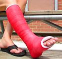 ankle cast.jpg