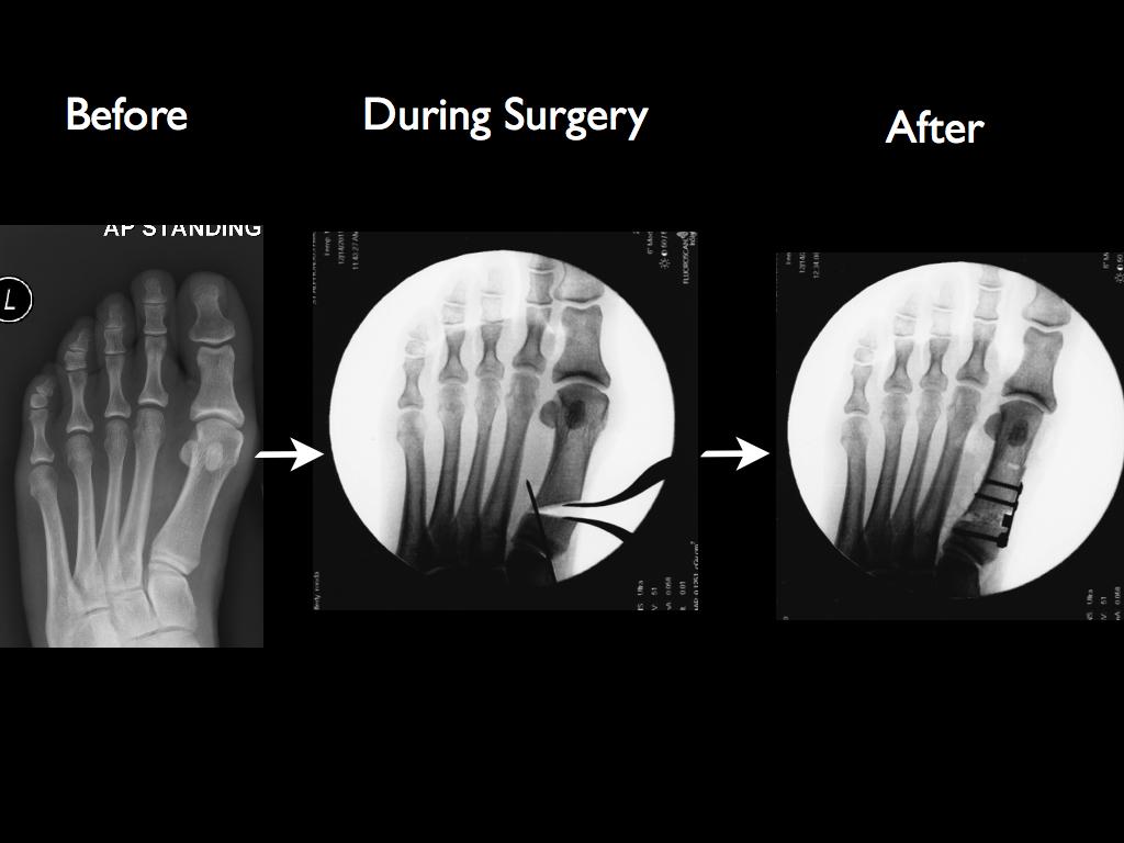 Bunion Surgery Xrays