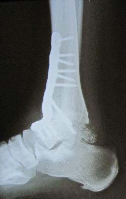 Ankle Fusion Xray Side