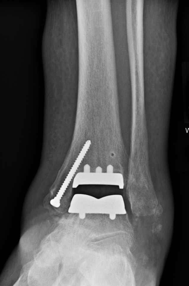 Total Ankle Replacement - This is the same patient depicted above. He required a complete replacement of his ankle in order to alleviate his pain and disability.