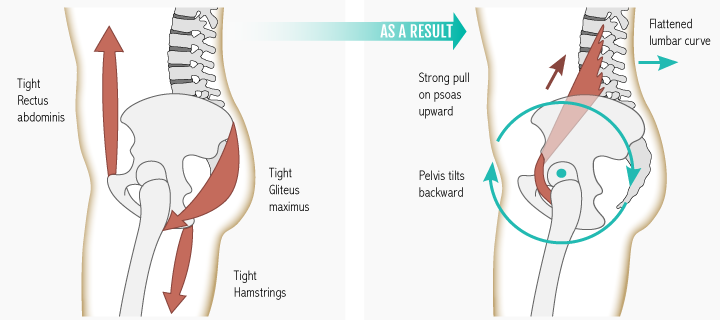 A posterior pelvic tilt can cause the lumbar spine to lose its natural, healthy curve and cause pain at the front of the hip joint. With time, restricted glute muscles contribute to psoas lengthening, which can cause your psoas to react defensively and tighten itself to maintain hip stability.