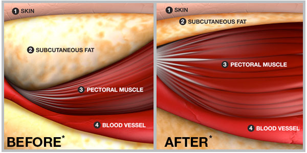 Illustration of increased muscle mass and decreased fat mass after adopting a strength training regimen.