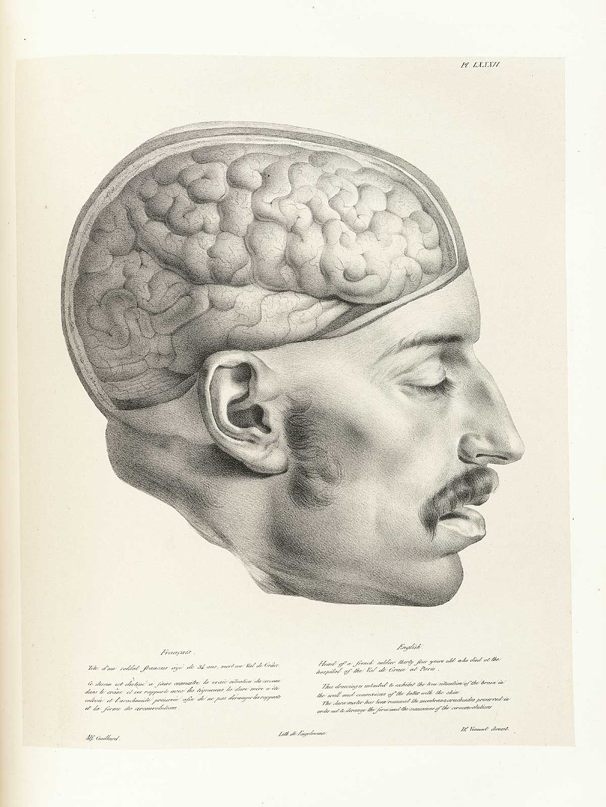 I mage from:http://www.nlm.nih.gov/exhibition/historicalanatomies/vimont_home.html