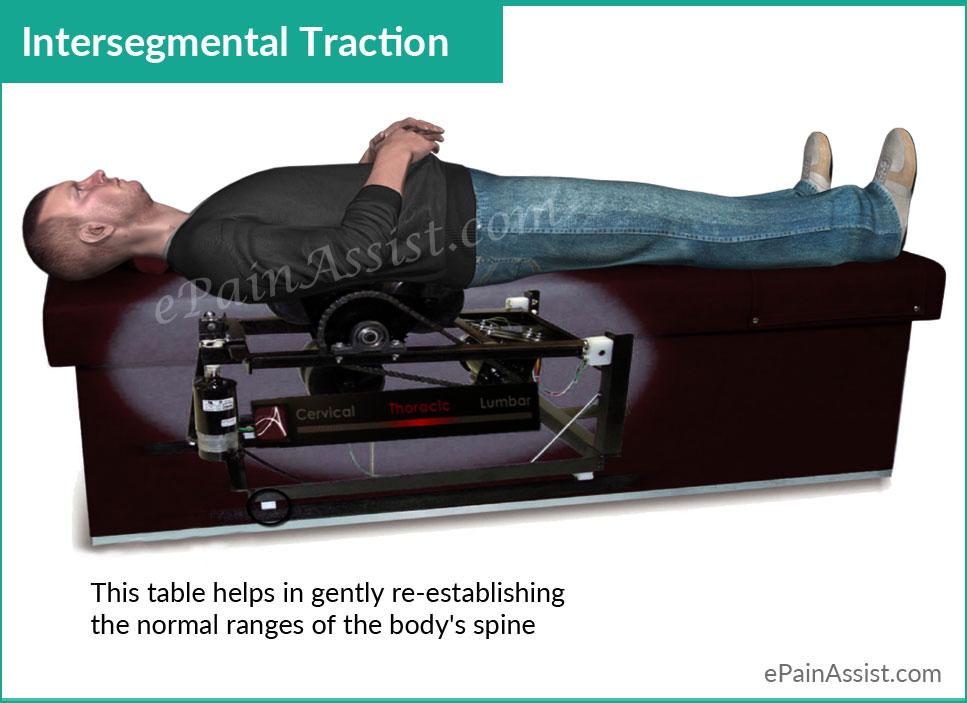 Intersegmental-Traction.jpg