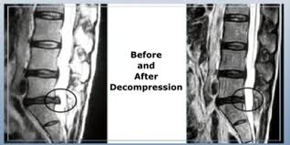 Notice the x-ray on the left, showing a herniated/bulging disc.  The x-ray on the right is of the same spine after non-surgical spinal decompression therapy.