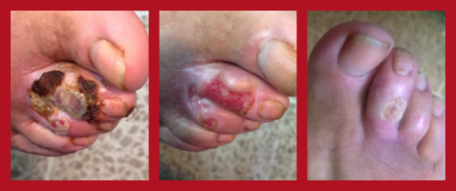 Healing of a patient's toe