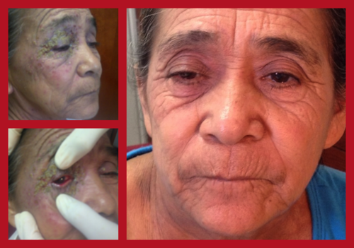 Frequently the clinic encounters patients with multiple maladies, especially in older patients. This patient has psoriasis, a bacterial super-infection, and conjunctivitis. Shown here when she came in and 10 days after treatment.