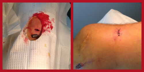 This patient sought attention at the clinic from a gun shot wound. Earlier in the day he was turned away without treatment from a regional hospital. The physician cleaned the wound, removed the bullet, applied antibiotic, and sutured the wound.