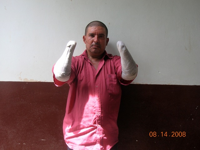 Guiellermo lost his arms when robbers broke into his home and attacked him and his family.
