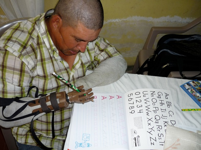 After getting fitted with his new prosthetic, Guiellermo practices writing the alphabet. This is the first time in seven years he was able to write his name.
