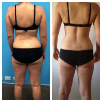 Jess with a body fat drop of 10kg and a visable difference in glutes, thighs and love handles all within 1 month of training !