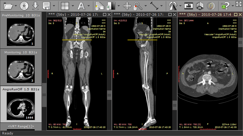 radiant_dicom_viewer_mpr_coronal_sagittal_axial_planes.png